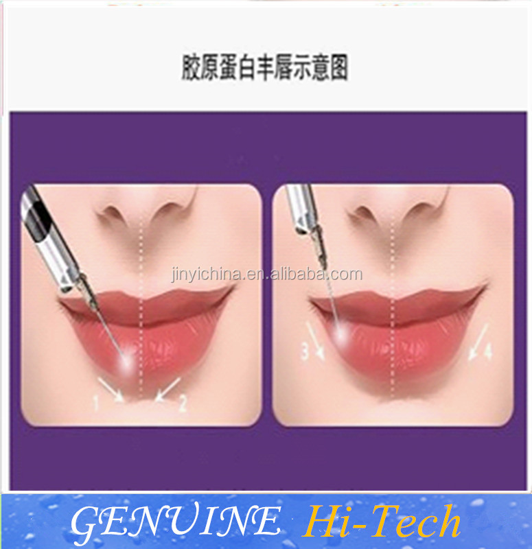 new product high quality injectable cross linked Hyaluronic acid gel dermal lip filler