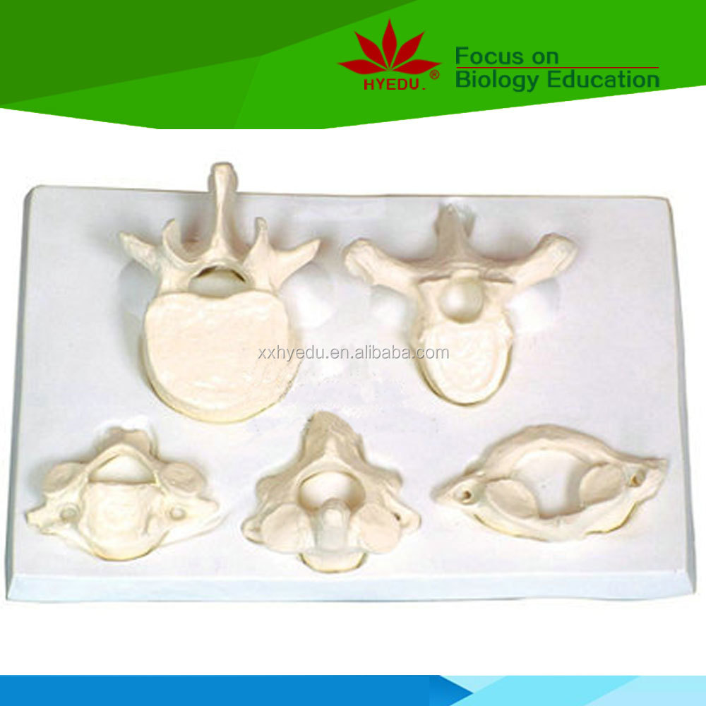 Medical model 1.5 times enlarged atlas axial cervial thoracic lumbar model