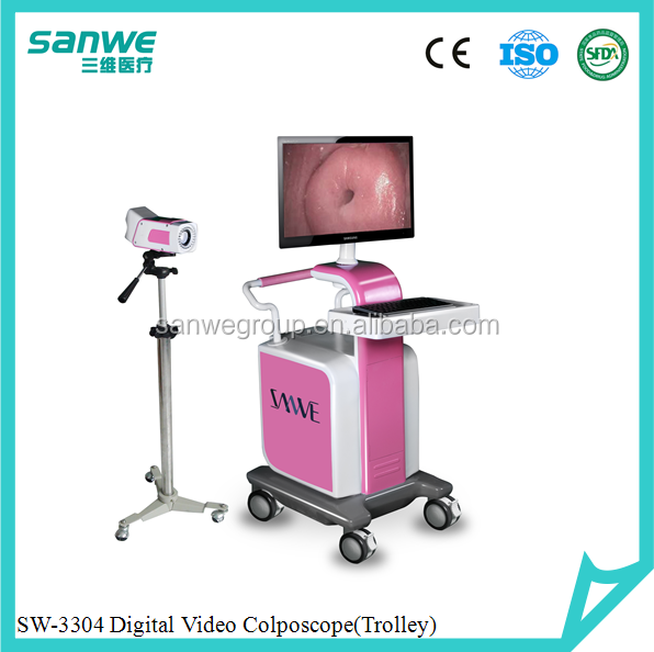 Digital Video Colposcope/Video Colposcope/Digital Electronic Colposcope