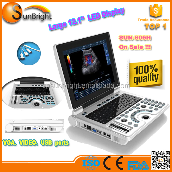 laptop ultrasound better than landwind ultrasound