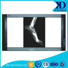 medical x-ray film x ray view box dental x ray film viewer