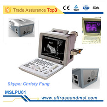 China ultrasound industrial equipment/ ultrasound scanner(MSLPU01F)
