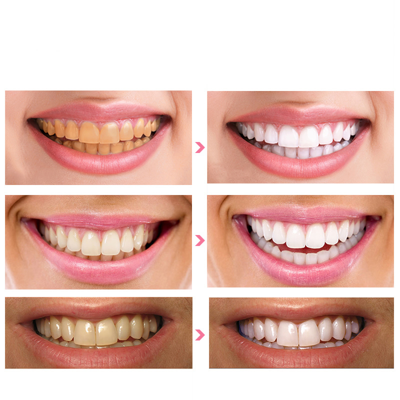 Hot Sale Teeth Whitening Essence Oral Hygiene Cleaning Removes Plaque Stains Dental Smile Teeth Serum