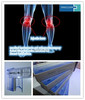 CE marked Hyaluronic acid injections to bone joint