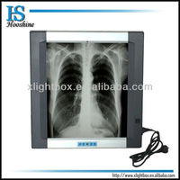 Single bank x-ray film viewer/self-induction/led/backlit