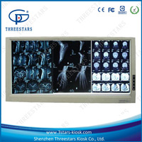 China x-ray film viewer medical equipment supplier 3d viewer