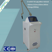 Fast Green tattoo removal EO active q switch nd yag laser 585 650nm machine