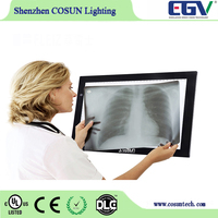 High Quality X-ray Viewer Illumilated Flat Panel Drawing Tracing Light Box