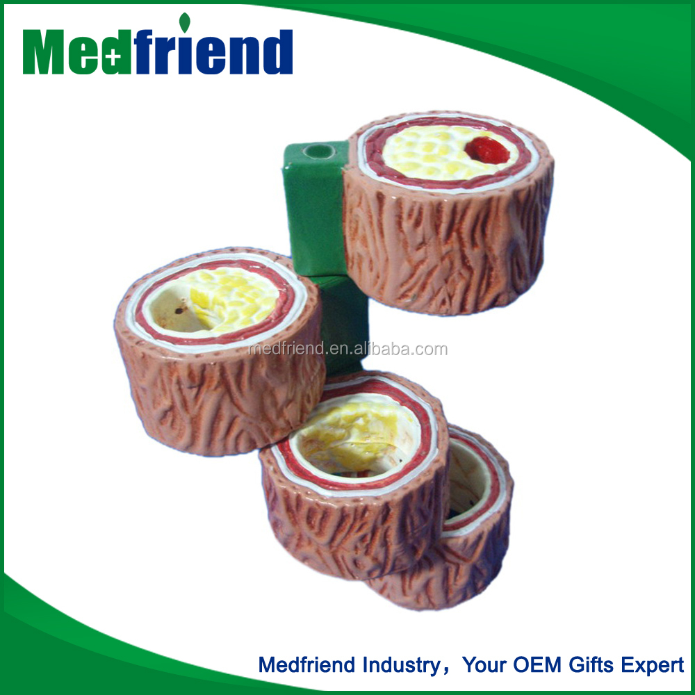 MFM020 Cheap Wholesale Human Artery Model