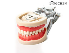 Lingchen Best selling teaching use standard size Dental Study Model with factory price,teeth and jaw model