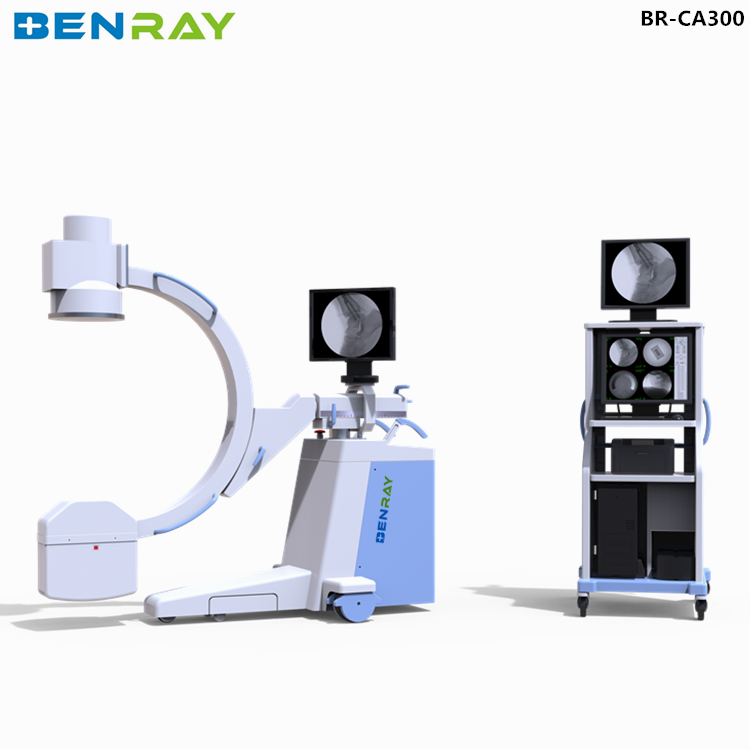 BR-CA300 mobile digital medical x-ray film digitizer scanner c arm fluoroscopy radiology equipment