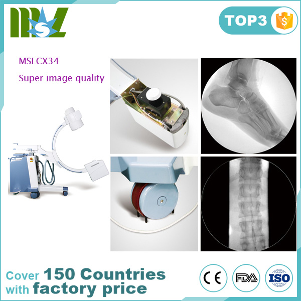 Canton Fair hot-selling mobile C-arm X-ray Machine for hospital and clinics MSLCX34