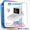Portable medical ultrasound diagnostic equipment & ultrasound body scanner with pesudo color DW360