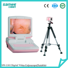 SW-3301 Hospital Gynecology Digital Video Colposcope / Trans-vaginal Colposcope / Laptop Digital Electronic Colposcope