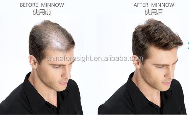 2017 hot selling hair fibers to cure receding hairline 123.jpg