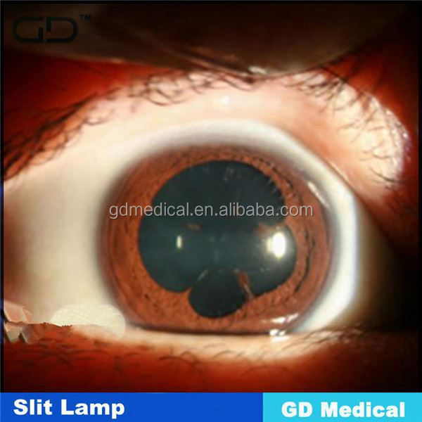 GaoDin Medical GSL-215 CE ophthalmic photo slit lamp
