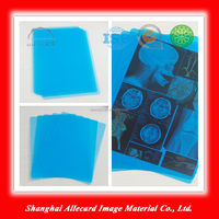 Lowest cost system inkjet x ray medical blue film for MRI CR CT DR x-ray image printing