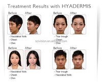HYADERMIS Facial Dermal hyaluronic acid gel