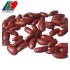 black purple speckled kidney beans, price of white kidney beans, large black speckled kidney beans