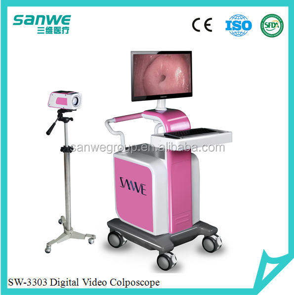 Sanwe Gynecological Digital Electronic Colposcope/Colposcopy SW-3301,Colposcopy Imaging Video System