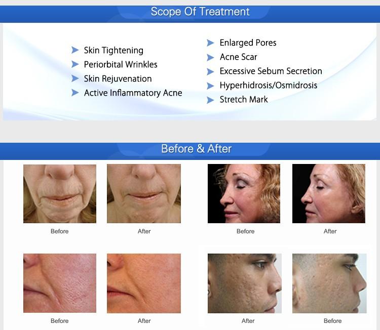 2018 vente Chaude portable peau acné vergetures retrait fractionnaire rf micro-aiguille machine