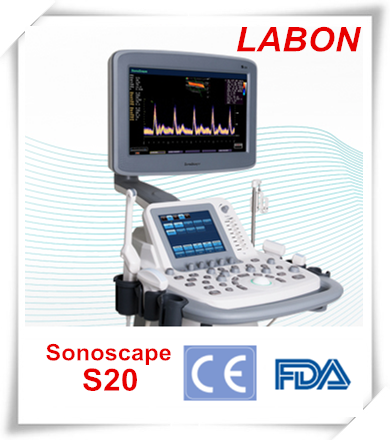 Sonoscape S20 hot sales color doppler ultrasound scanner with convex,linear probe