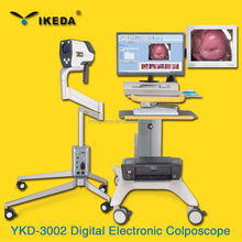 YKD-3001 1080p HD ABS plastic vagina pictures digital colposcope camera with SD-Storage/Colposcopy machine