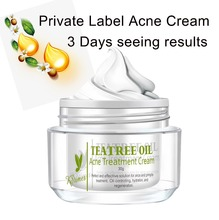 Herbal Pure Acne Care Best Anti Acne Pimples Removal Treatment Cream for Male and Female