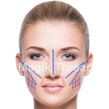 Nasolabial folds/Midface/Nose PDO Thread Lift