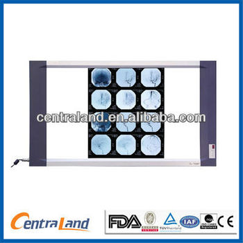 Double TFT LCD X-ray film viewer
