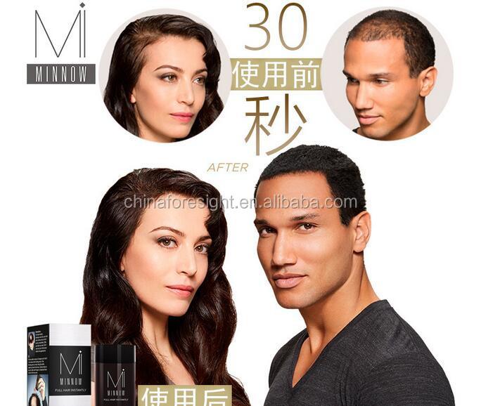 2017 hot selling hair fibers to cure receding hairline 621.jpg