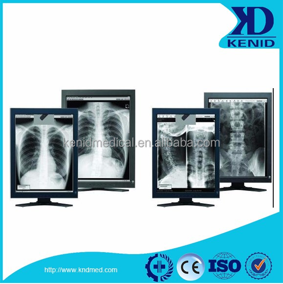 radiography film viewer/xray film viewer