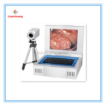 Advanced China Best-selling Gynecological Digital Electronic Colposcope/Colposcopy