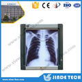 X Ray film reader manufacturer,medical x ray film viewer and led x ray view box
