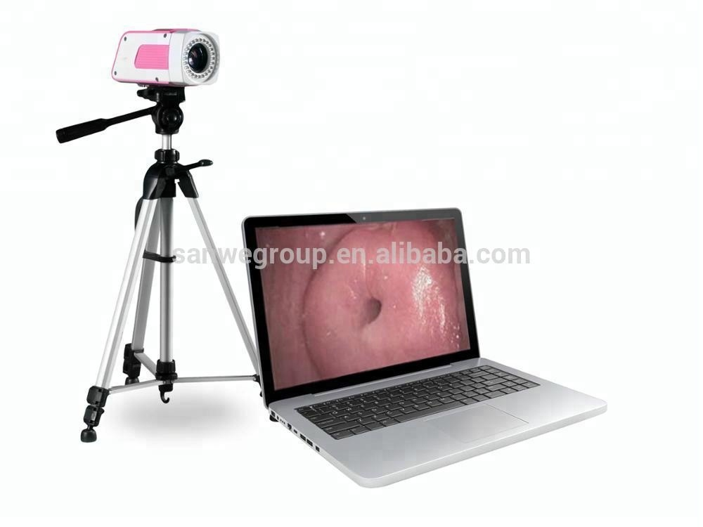 Digital-Colposcopy-System-Sanwe-Colposcope-Camera-with.jpg