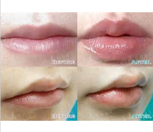 CE Safe and Effective lips enhance cross-linked Hyaluronic Acid pure <strong>natural</strong> Dermal Filler