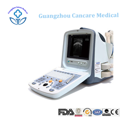 Ultrasonography Machine Equipment