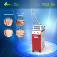 Nd yag laser tattoo removal pigmentation removal