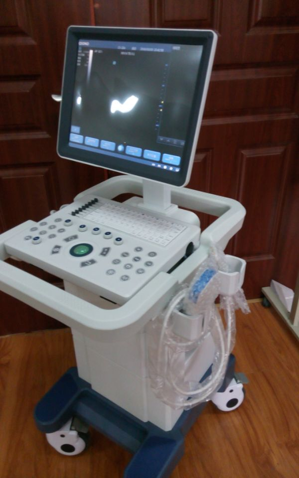 QSONO Pregnancy baby checking 2D color doppler ultrasound price, Large screen trolley ultrsound for big hospitals