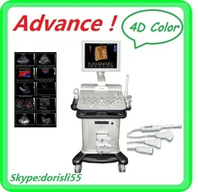 Better than mindray ultrasound scanner/ compared with mindray ultrasound machine MSLCU15D