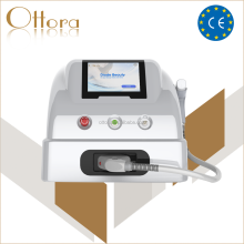 Laser freckle removal tatoo laser machine q switched nd yag laser