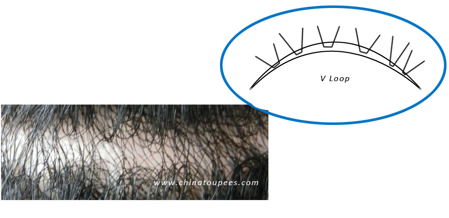 V-loop Men hair replacement hair replacement system