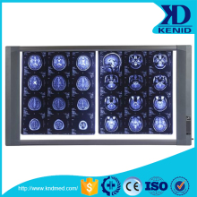 x ray viewer price/china supplier led negatoscope/radiography film viewer
