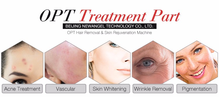 Painless permanent stable energy hair removal opt