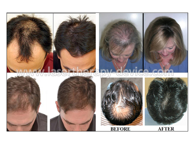 US FDA approved bald head treatment for bald laser hair regrow helmet