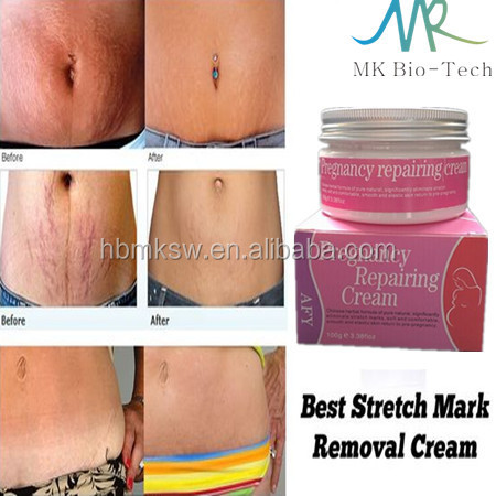 AFY 100g pregnancy stretch mark removal <strong>cream</strong> for pregnancy repairing