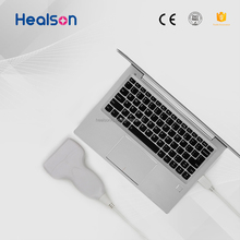 HEALSON HS-UP20L USB probe ultrasound usb ultrasound scanner