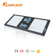 China best selling super thin LED medical x ray film viewer with CE