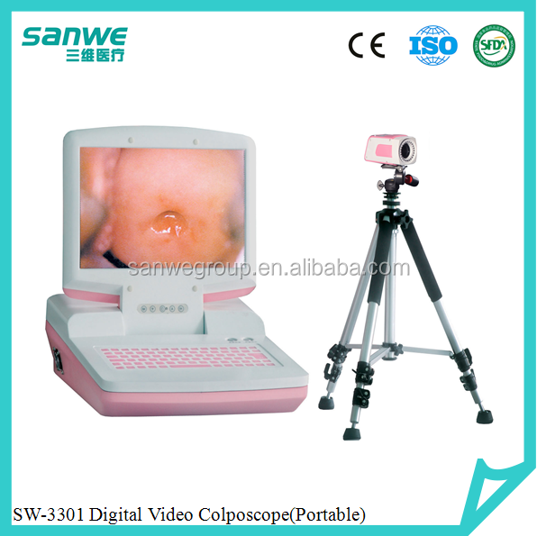 hospital optical video colposcope,Portable Electronic type camera colposcopy,