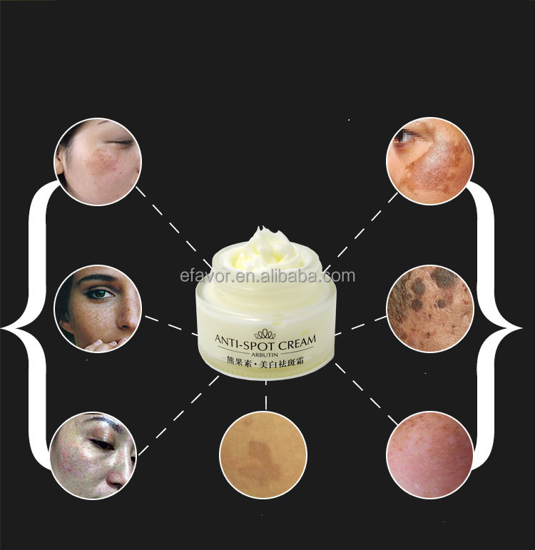 hot selling freckle removing facial whitening cream for dark spot removal with sample